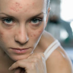 The Differences Between Teen and Adult Acne You Must Know