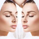How To Choose The Right Cosmetic Surgeon For Your Needs
