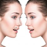 Rhinoplasty Surgery in Thailand – Choosing the Right Surgeon