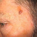 7 Reasons to Get a Regular Skin Cancer Check